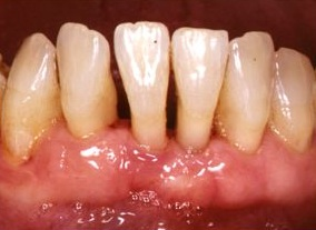 Foto de periodoncia Clínica Dental Murtra Barcelona